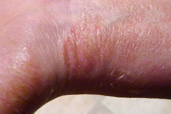 Before-Schuppenflechte