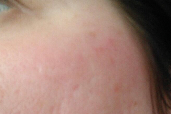 After-Rosacea